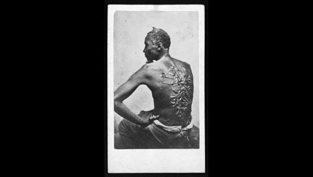 """One of the most damning photos of the time, escaped slave Gordon shows his scarred back at a medical examination in Louisiana, 1863. """"The negroes were the most spoiled domestics in the world,"""" states information on the website of the Sons of Confederate Veterans."""